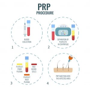 Illustration of how PRP is prepared
